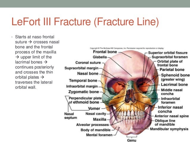 le fort fracture