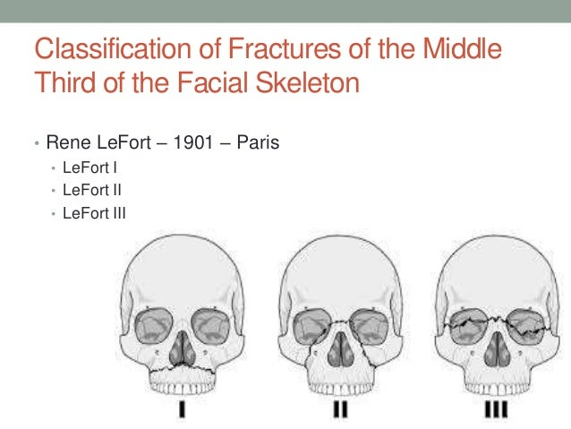 Question removed fractures of the facial bones