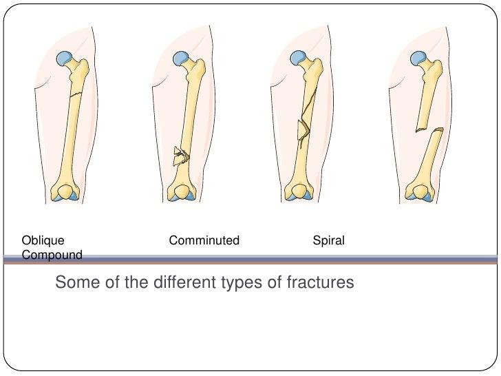 Fractures Presentation