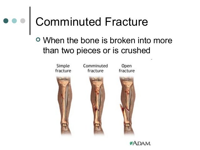 fractures sprains and dislocations, Human body