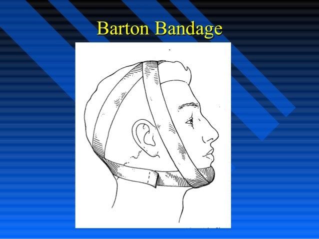 Barton Bandage Fracture stabilization