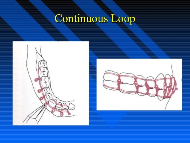 Continuous loop wiring