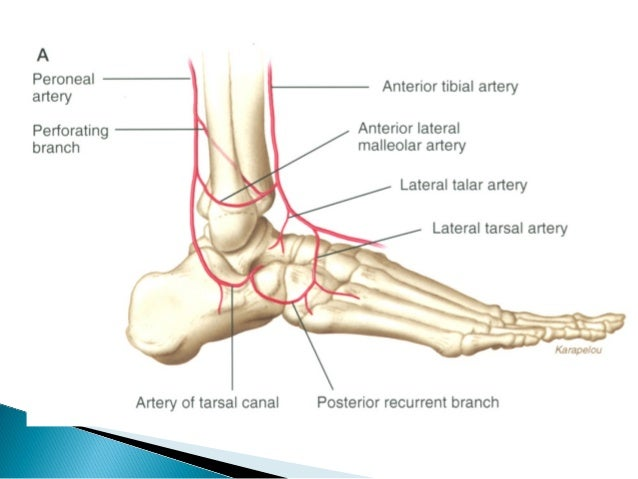  Talar Neck fractures-Hyper dorsiflexion     The neck of the talus impacts against the  leading edge of distal tibia. Fr...