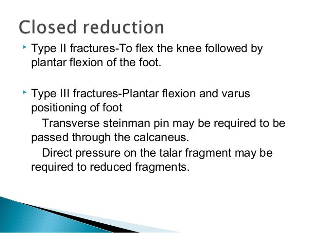    Anterior to posterior screw fixation   Posterior to anterior screw fixation   Direct plate fixation