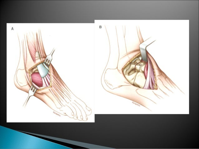    Treatment is extremely challenging   Avascular body of the talus acts as large    sequestrum.   Surgical debridement...