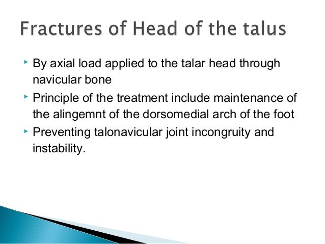 Fracture talus