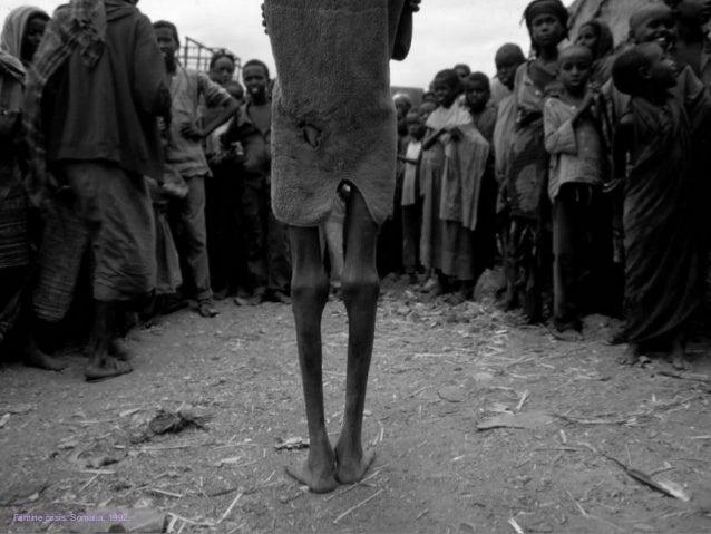 Famine crisis. Somalia, 1992.