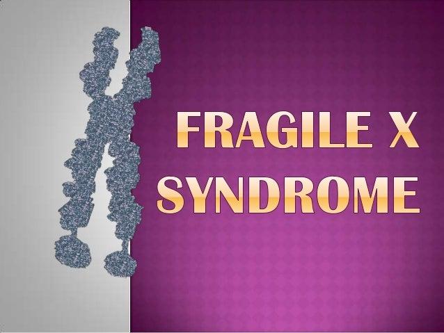 fragile x syndrom