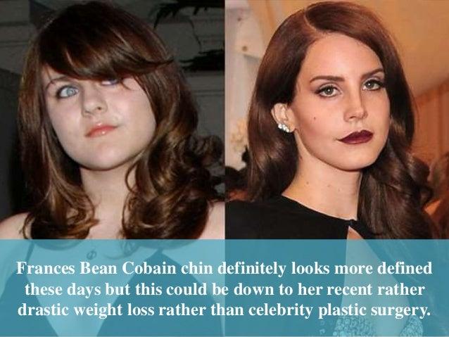 frances bean cobain plastic surgery