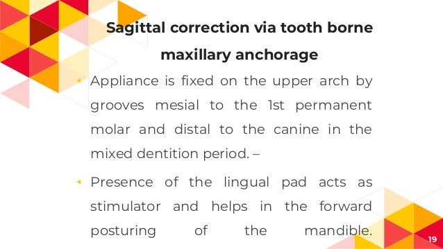 Sagittal correction via tooth borne maxillary anchorage ◂ Appliance is fixed on the upper arch by grooves mesial to the 1s...