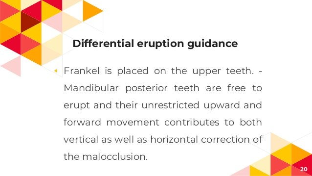 Differential eruption guidance ◂ Frankel is placed on the upper teeth. - Mandibular posterior teeth are free to erupt and ...