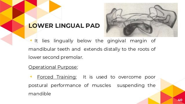 LOWER LINGUAL PAD ◂ It lies lingually below the gingival margin of mandibular teeth and extends distally to the roots of l...