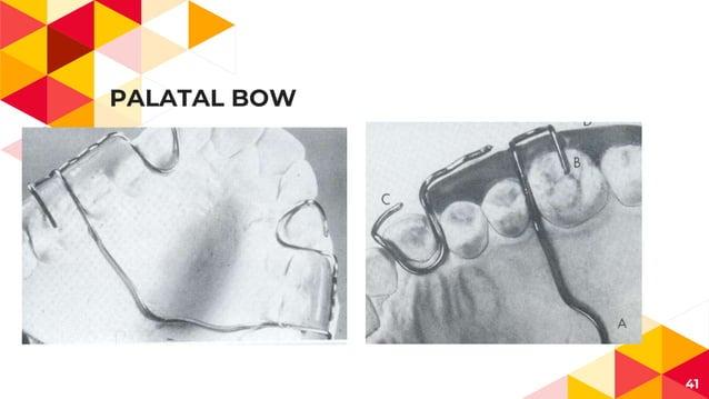 PALATAL BOW 41