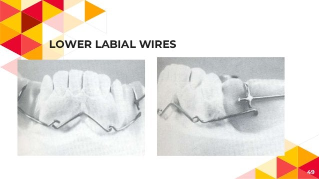 LOWER LABIAL WIRES 49