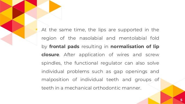 ◂ At the same time, the lips are supported in the region of the nasolabial and mentolabial fold by frontal pads resulting ...