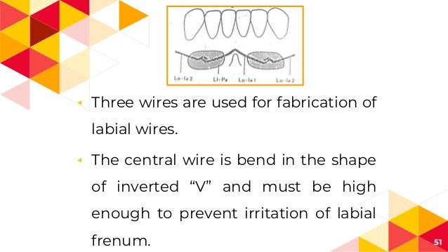 """◂ Three wires are used for fabrication of labial wires. ◂ The central wire is bend in the shape of inverted """"V"""" and must b..."""