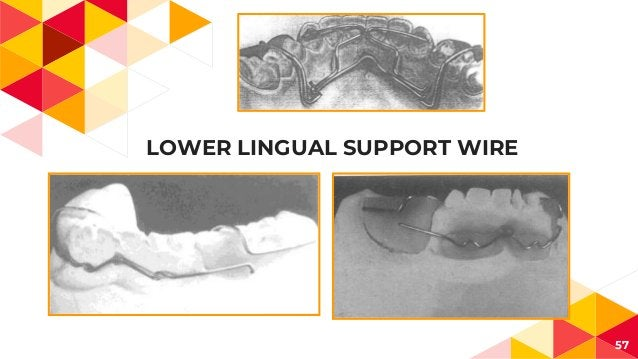 LOWER LINGUAL SUPPORT WIRE 57