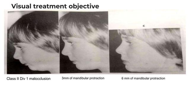 Visual treatment objective Class II Div 1 malocclusion 3mm of mandibular protraction 6 mm of mandibular protraction