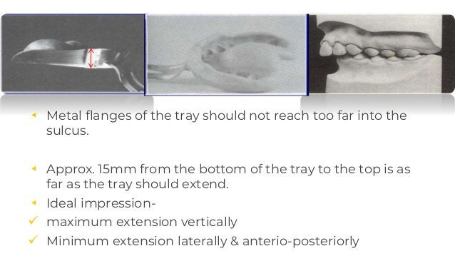 ◂ Metal flanges of the tray should not reach too far into the sulcus. ◂ Approx. 15mm from the bottom of the tray to the to...