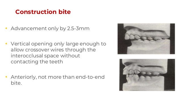 Construction bite ◂ Advancement only by 2.5-3mm ◂ Vertical opening only large enough to allow crossover wires through the ...