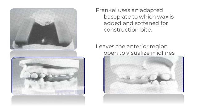 Frankel uses an adapted baseplate to which wax is added and softened for construction bite. Leaves the anterior region ope...