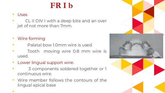 FR I b ◂ Uses ◂ CL II DIV I with a deep bite and an over jet of not more than 7mm. ◂ Wire forming ◂ Palatal bow 1.0mm wire...