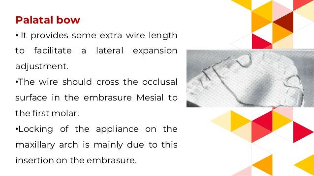 Palatal bow • It provides some extra wire length to facilitate a lateral expansion adjustment. •The wire should cross the ...