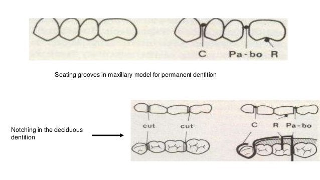 Seating grooves in maxillary model for permanent dentition Notching in the deciduous dentition