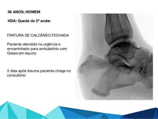 56 ANOS; HOMEM HDA: Queda do 2º andar FRATURA DE CALCÂNEO FECHADA  Paciente atendido na urgência e encaminhado para ambula...