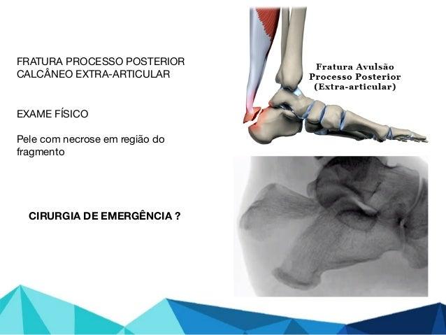 FRATURA PROCESSO POSTERIOR  CALCÂNEO EXTRA-ARTICULAR  EXAME FÍSICO  Pele com necrose em região do fragmento  CIRURGIA DE E...