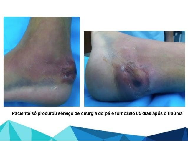Paciente só procurou serviço de cirurgia do pé e tornozelo 05 dias após o trauma