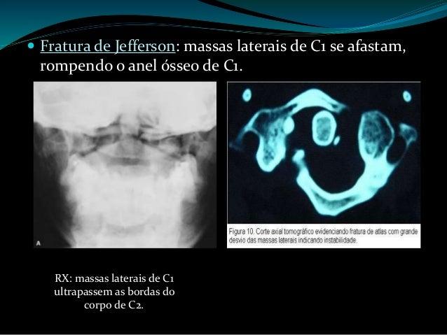 Fratura de Jefferson: Estável Tração craniana com imobilização cervical por 3 – 4 meses