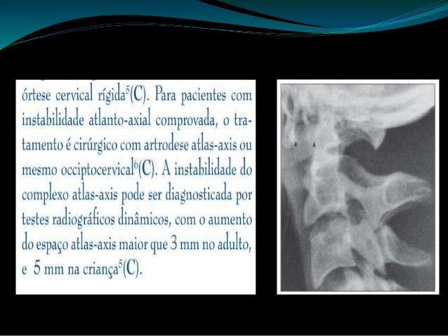  Fratura do enforcado: fratura dos elementos posteriores do corpo de C2, geralmente associada a deslocamento anterior do ...