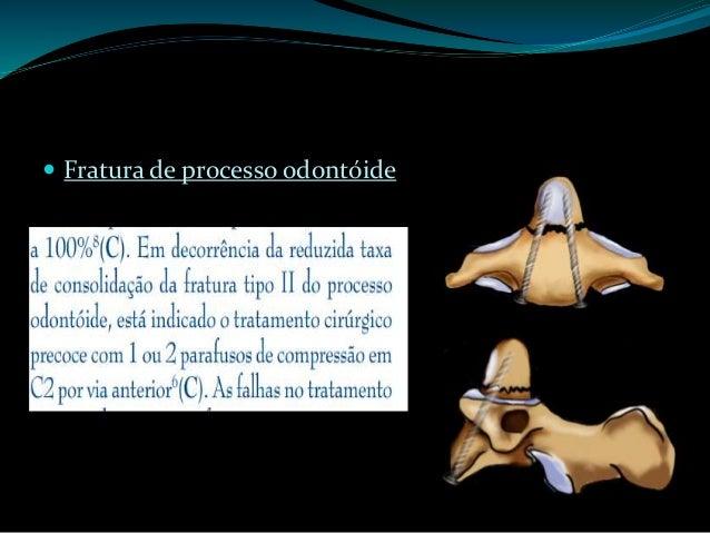 """Fratura em flexão do tipo """"em Lágrima"""":  Ruptura dos ligamentos posteriores associada à compressão anterior.  Deslocamen..."""