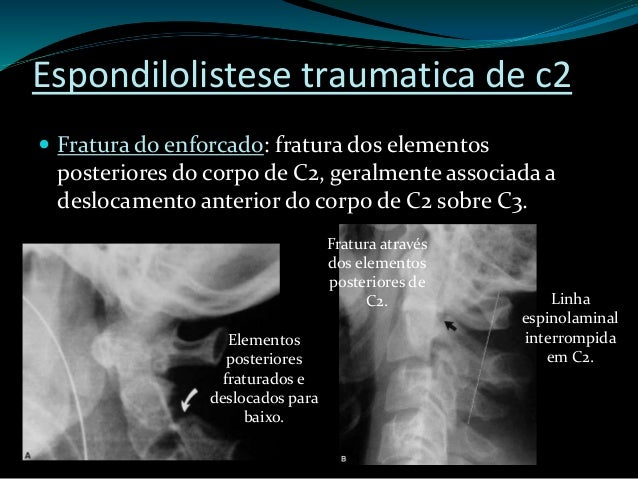 Subaxial Cervical Spine Injury Classification (SLIC)