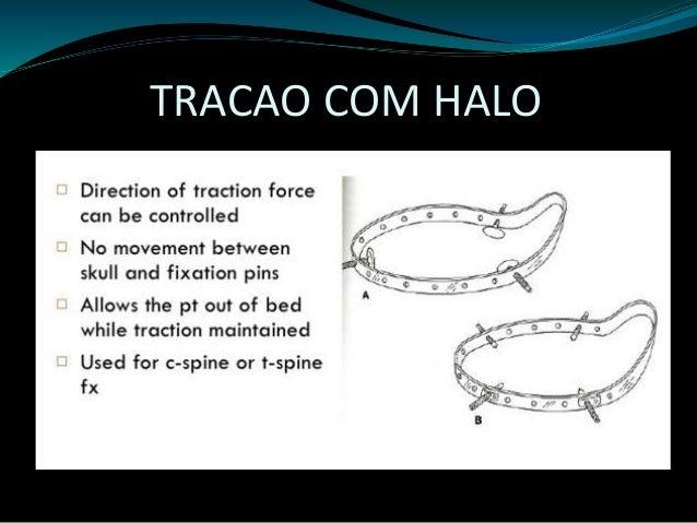 Fratura  cervical