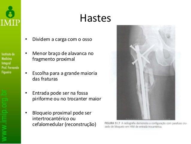 Armadilhas: má redução em varo, deformidade rotacional, discrepância no comprimento, não diagnóstico frat colo e lesão lig...