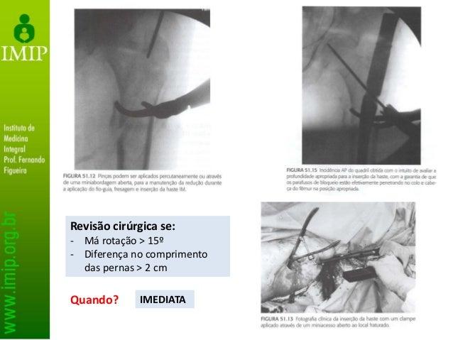 Placas • Melhores candidatos: - Fragmentos proximais curtos - Padrões de fratura simples e que se prestem à redução anatôm...