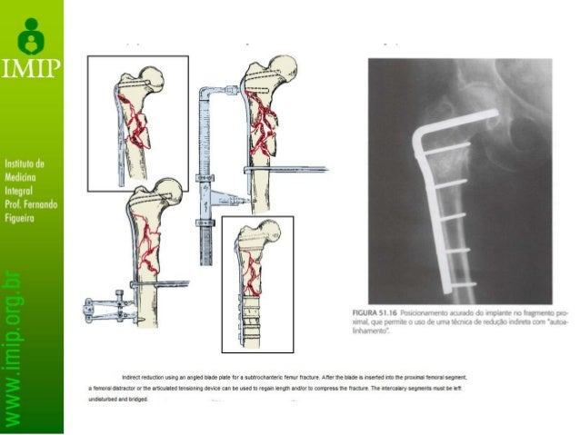 Fraturas atípicas do Fêmur THE JOURNAL OF BONE & JOINT SURGERY VOLUME 95-A - NUMBER 2 - JANUARY 16, 2013 American Society ...