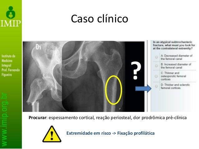 Caso clínico ? Procurar: espessamento cortical, reação periosteal, dor prodrômica pré-clínica Extremidade em risco -> Fixa...