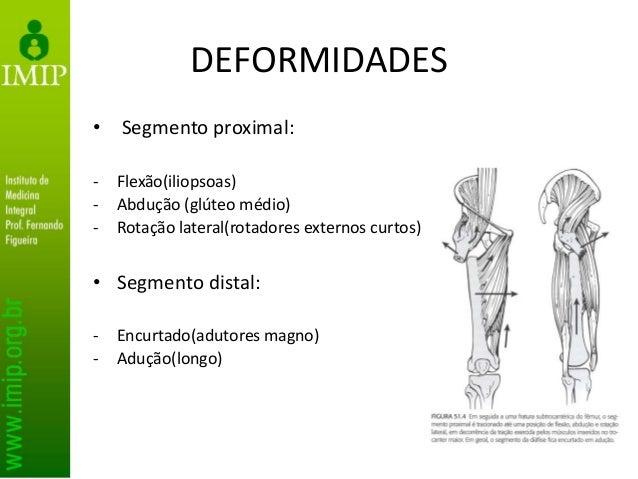 DEFORMIDADES • Segmento proximal: - Flexão(iliopsoas) - Abdução (glúteo médio) - Rotação lateral(rotadores externos curtos...