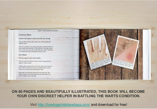 Free E-book:  Book of Home Remedies to Cure Warts Slide 3