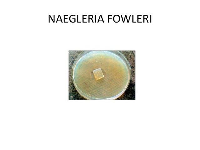 Free Living Amebae Naegleria Fowleri Acanthamoeba Balamuthia Ma