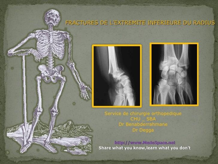 FRACTURES DE L'EXTREMITE INFERIEURE DU RADIUS Service de chirurgie orthopedique CHU _ SBA Dr Benabderrahmane Dr Degga http...
