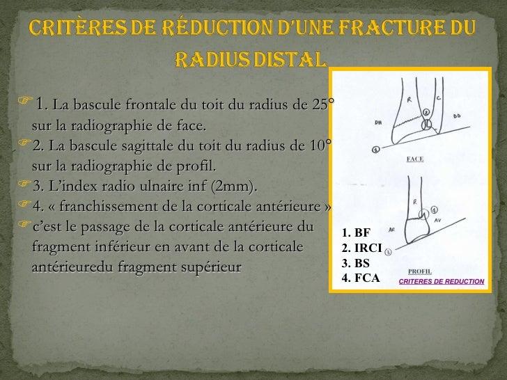 1. BF 2. IRCI 3. BS 4. FCA <ul><li>1 . La bascule frontale du toit du radius de 25° sur la radiographie de face. </li></ul...
