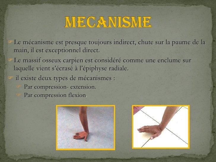 <ul><li>Le mécanisme est presque toujours indirect, chute sur la paume de la main, il est exceptionnel direct. </li></ul><...