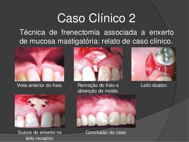 Caso Clínico 2 Técnica de frenectomia associada a enxerto de mucosa mastigatória: relato de caso clínico. Sutura do enxert...
