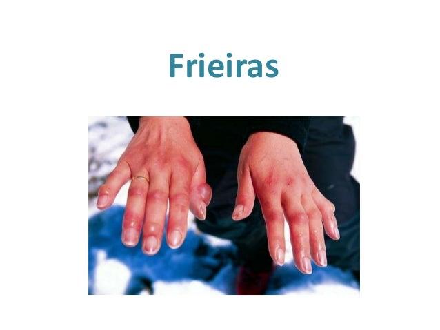 Frieiras