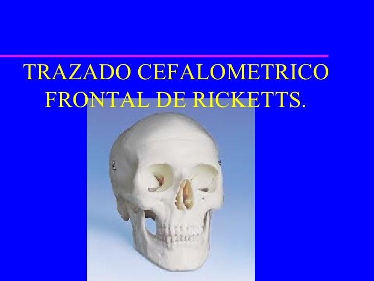 TRAZADO CEFALOMETRICO  FRONTAL DE RICKETTS.
