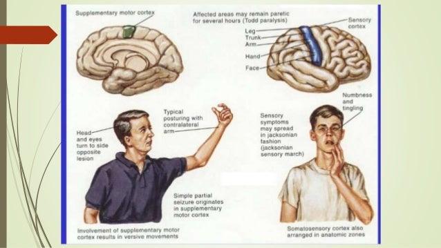 arthritis difficulty writing after seizure